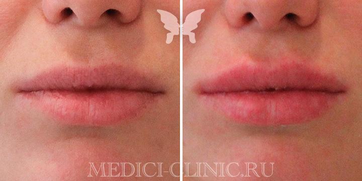 Фото до и после коррекции губ препаратом Juvederm Volift 1 ml