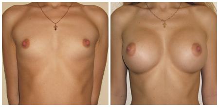 Фото результатов маммопластики