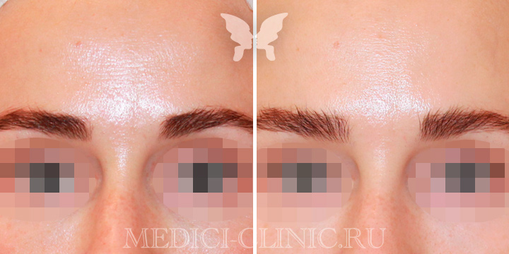 Коррекция мимических морщин препаратом Botox