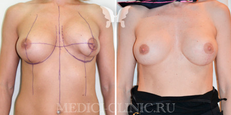 Сложные случаи в маммопластике