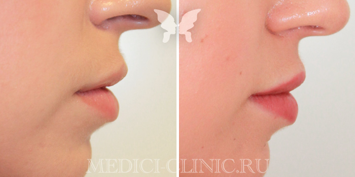 Коррекция губ препаратом Juvederm Volbella 1 ml