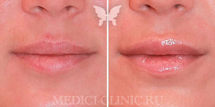 Фото до и после коррекции губ препаратом Juvederm 3