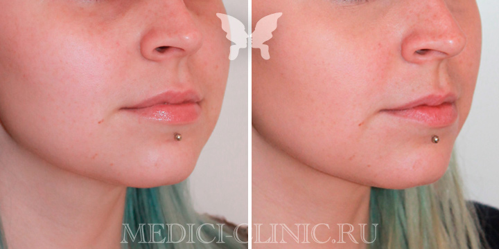 Коррекция носослезной борозды препаратом Yvoire 1 ml