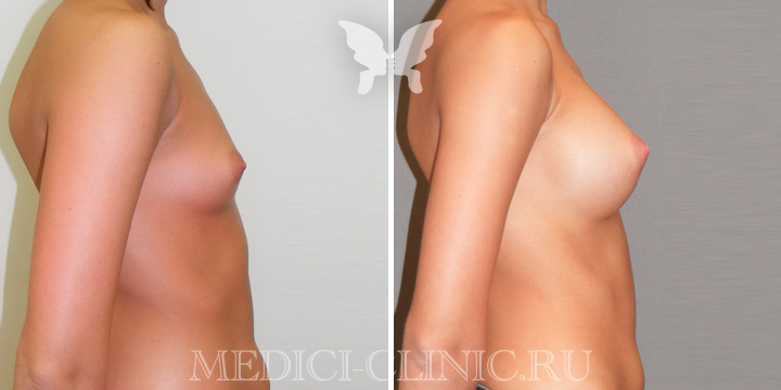 Увеличивающая маммопластика груди. Фото до и после