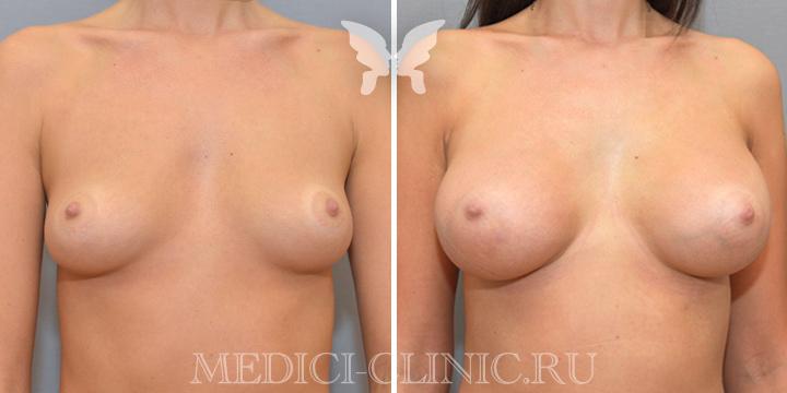 Результаты увеличения груди. Фото до и после
