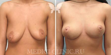 мастопексия груди 1