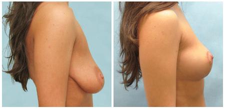 Фото результатов подтяжки груди