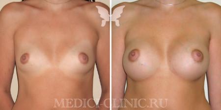 увеличение груди фото до и после 1