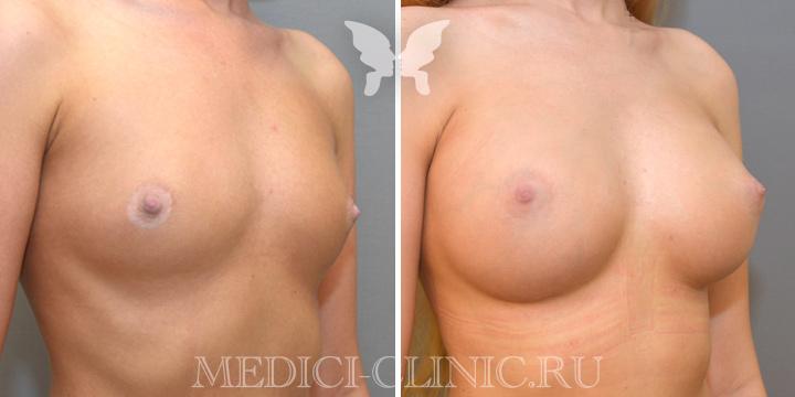 Увеличение груди, фото до и после