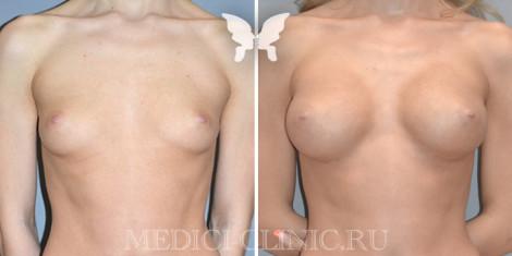 увеличивающая маммопластика 7