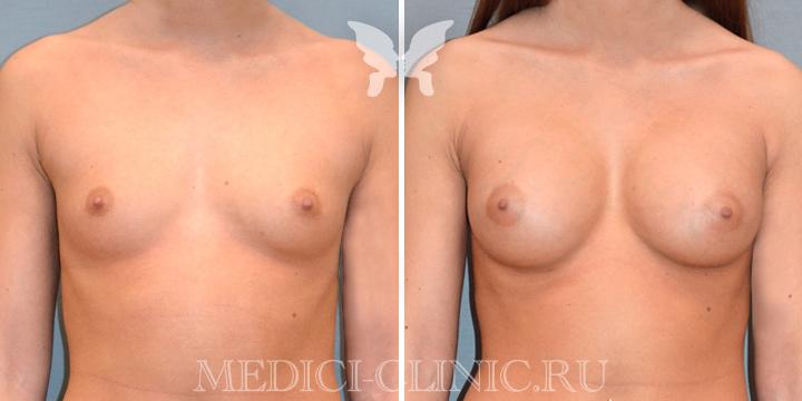 Фото до и после увеличивающей маммопластики