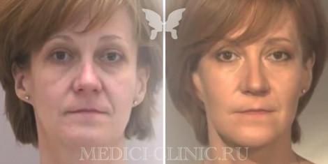 Результаты подтяжки лица нитями Силуэл-Лифт. Фото до и после