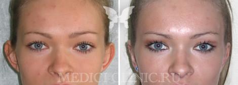 Результаты операции по отопластике. Фото до и после
