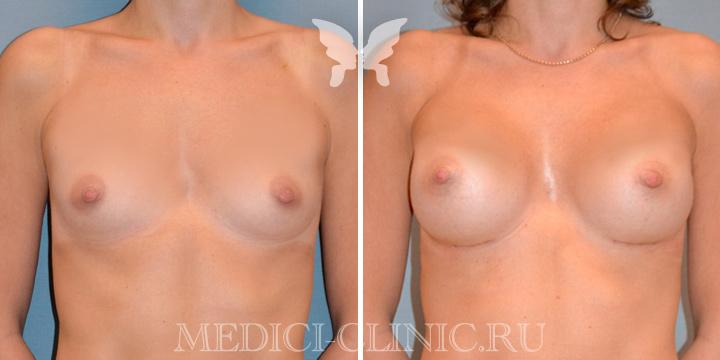 Увеличение груди у доктора Агапова