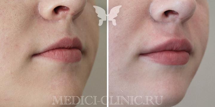 Коррекция губ препаратом Juvederm 3 1 ml. Фото до и после