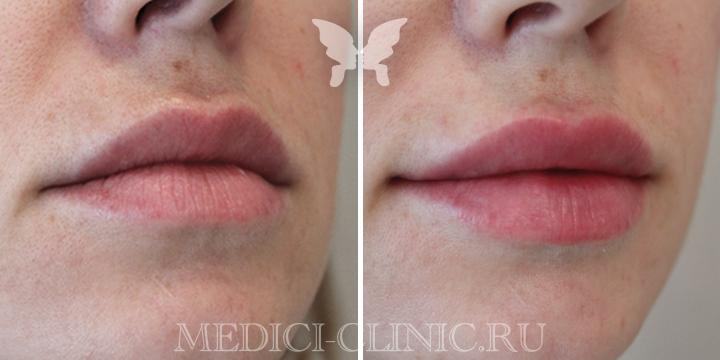 Фото до и после. Коррекция губ препаратом Juvederm