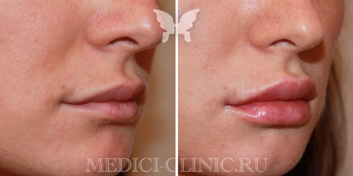 Фото до и после коррекции губ препаратом Juvederm Ultra Smile 0,55 ml