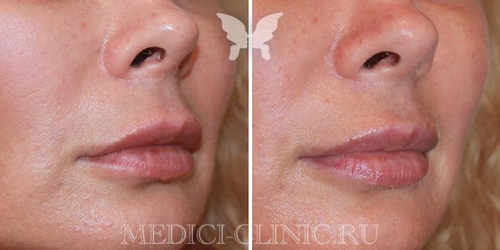 Фото до и после коррекции губ  препаратом Juvederm Volbella 1 ml
