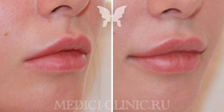 Выполнена коррекция губ препаратом Juvederm Volbella 1 ml