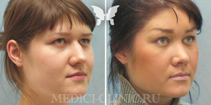 Результаты имиджевой пластики, фото до и после