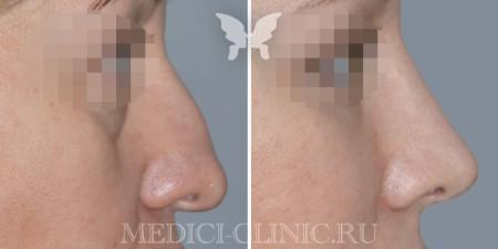 Результаты пластики носа