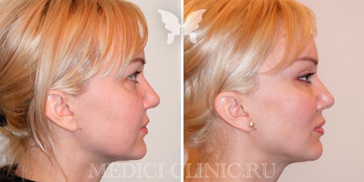 Эндоскопическая подтяжка.  Фото до и после.