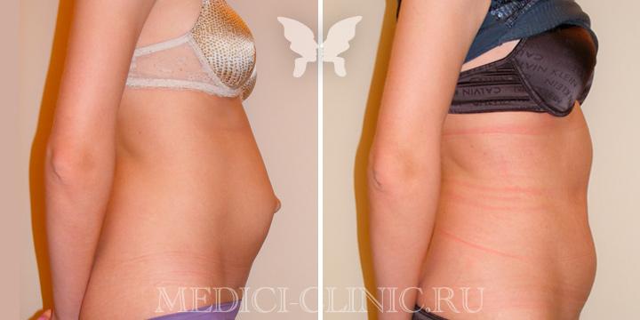 Абдоминопластика. Фотографии до и после.