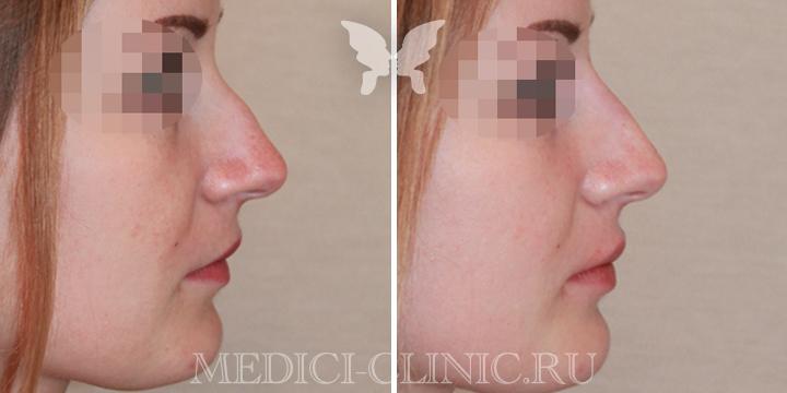 Выполнена коррекция спинки носа и верхней губы препаратом Juvederm Volift 1 ml