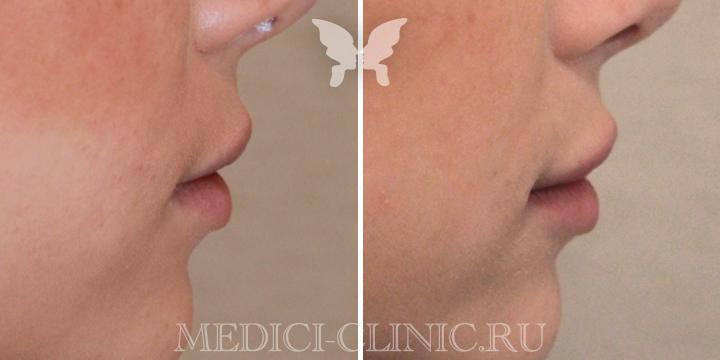 Выполнена коррекция губ препаратом Juvederm Ultra Smile 0,55 ml