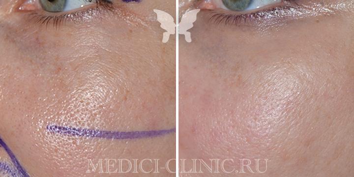 лазерная шлифовка лица, фото до и после