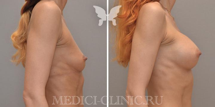 Результаты увеличения груди