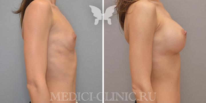 Фото увеличения груди