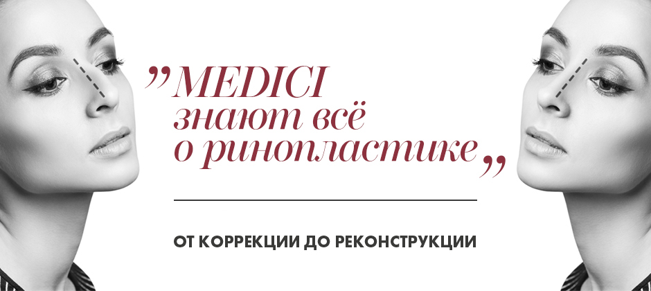 Medici_slider_Rhino_3