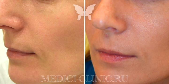 Результаты: фракционная лазерная шлифовка кожи лица на аппарате СО2 (2)
