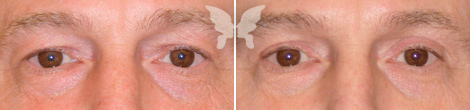Результаты блефаропластики у мужчин (до и после)