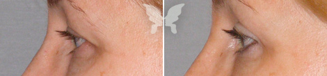Блефаропластика, фото до и после 7 месяцев
