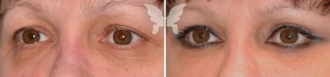 Блефаропластика, фото до и после 1 месяца