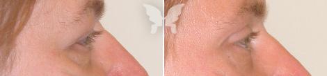 Блефаропластика, фото до и после 1 года и 2 месяцев