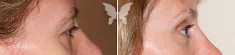 Блефаропластика, фото до и после