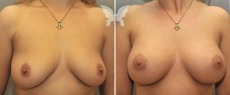 breast_1