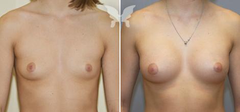 breast_next-1