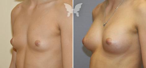 Результат увеличивающей маммопластики (фото до и после)