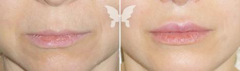 Фото до и после операции «Булхорн»