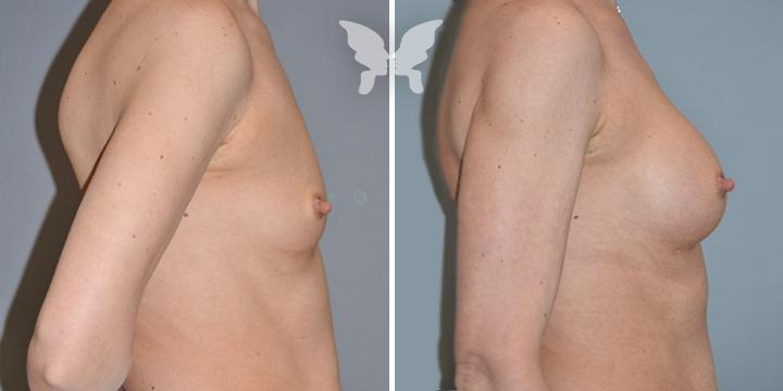Результаты увеличения груди (фото до и после)