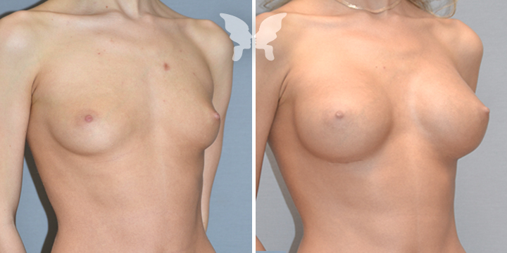 Пластическая операция на носу фото до и после