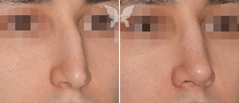 Результаты ринопластики (фото до и после)
