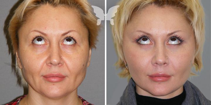 Подтяжка лица, фото до и после 2 месяцев