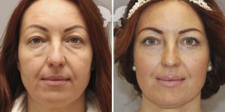 Фото до и после операции по подтяжке лица