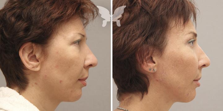 Результаты эндоскопической подтяжки лица
