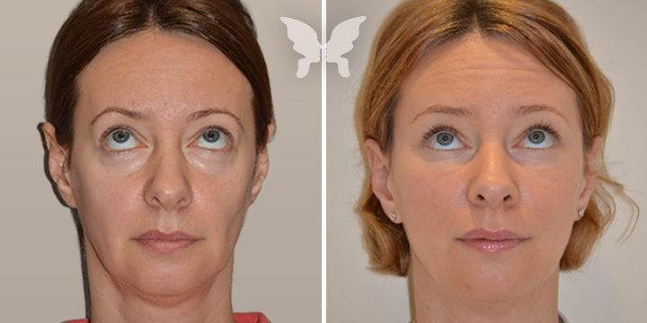 Подтяжка лица, фото до и после 1 года и 4 месяцев